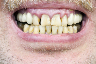 photo of periodontal disease