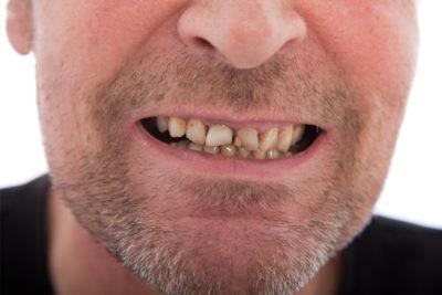 man with bad gum needs diagnosing gum disease