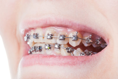 girl with braces after visiting Orthodontist